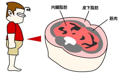 内臓脂肪型と皮下脂肪型のおなかの贅肉