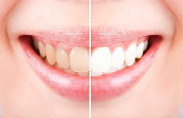 おじさんこそ歯が命!自宅でホワイトニング&虫歯予防!